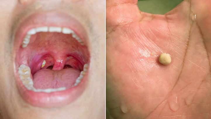 Tonsil stones: How To Treat Them   ENT Specialist Singapore